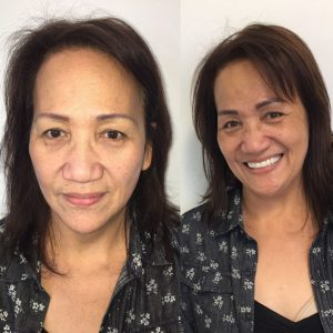 permanent makeup coverup before and after picture