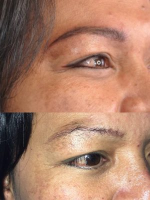 permanent eyeliner tattoo before and after photo