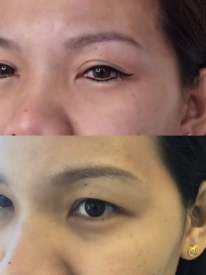 yama studios before and after photos eyeliner