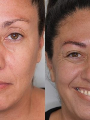 Before and after microblading first round