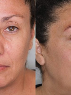 Microblading before and after right view after round one