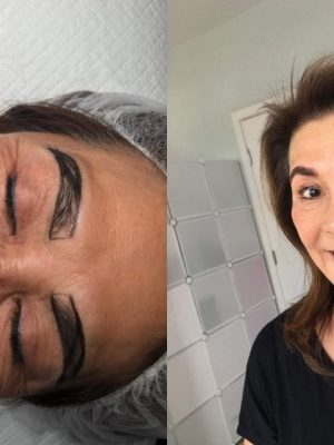 Microblading before and after measurement side view