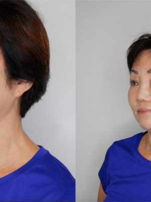 Before and after microblading left view