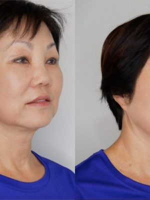 Microblading coverup of old work side view before and after