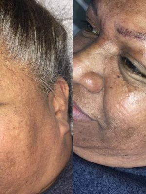 Microblading before and after side view first round