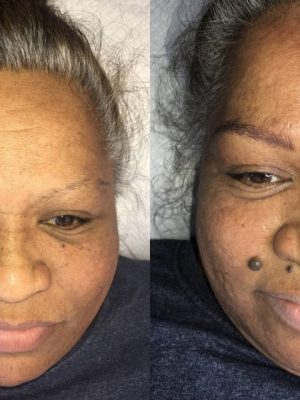 Microblading before and after front view