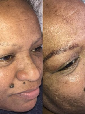 Before and after microblading side view