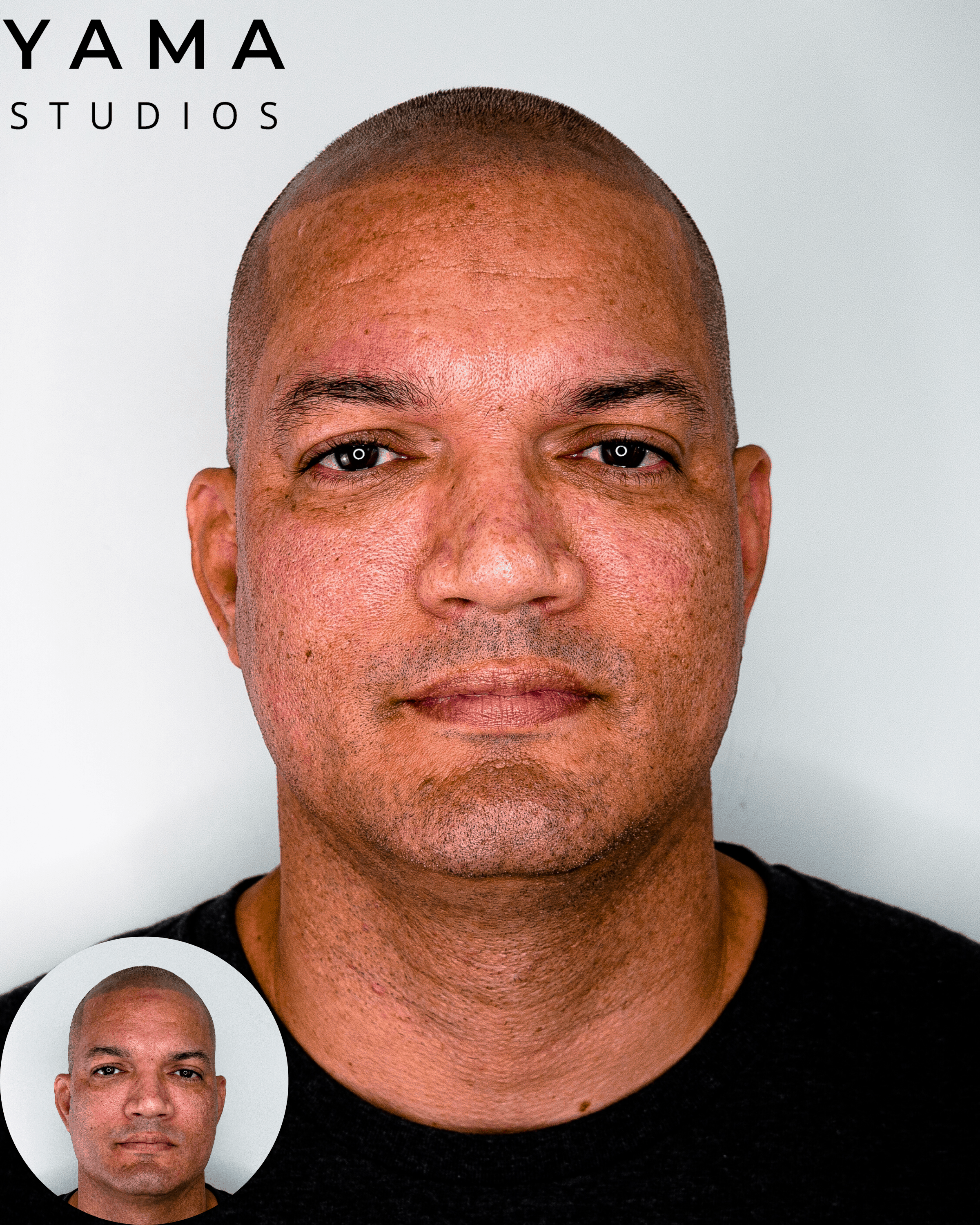 Scalp micropigmentation hair tattoo old SMP cover up at YAMA Studios on Oahu in Honolulu, Hawaii.