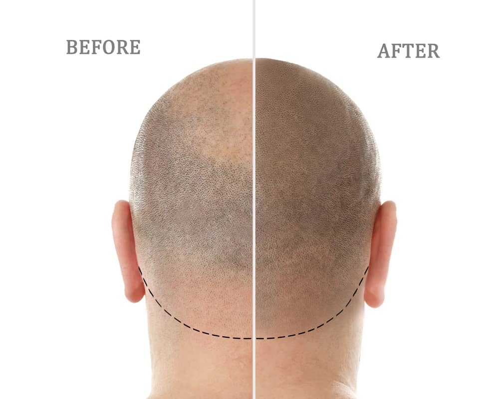 View of before and after scalp micropigmentation in Honolulu, Hawaii at YAMA Studios